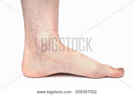 Varicose veins on female leg isolated on white background