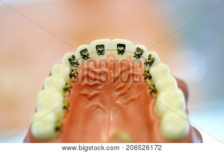 Braces on the model of the lower human teeth, dental tooth dentistry close-up