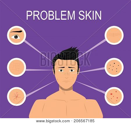 Male with problem skin such as acne, wrinkles, dark spots. Illustration for cosmetic websites, brochures. Vector