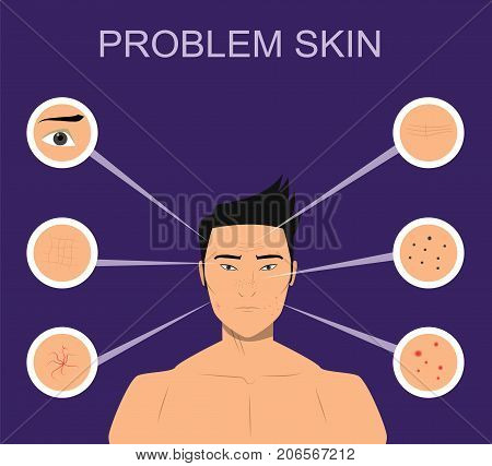 Asian man skin problems skin such as acne, wrinkles, dark spots. Illustration for cosmetic websites, brochures. Facial care concept. Face care for men.