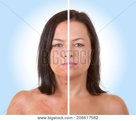 Skin Care Concept. Young Model Woman with Skin Problem Before and After Acne Treatment Procedure on a blue background