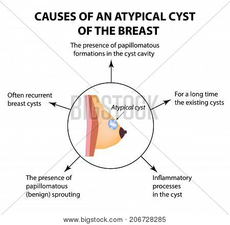 Causes of an atypical cyst in the mammary gland. World Breast Cancer Day. Tumor. Vector illustration on isolated background.