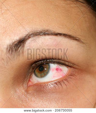 Inflamed eye. Red vascular mesh in the eye.