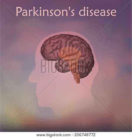 Parkinson's disease poster, banner. Vector medical illustration. Blurred background, pink silhouette of old man head, anatomy image of damaged human brain.