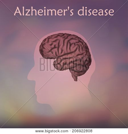Alzheimer's disease poster, banner. Vector medical illustration. Blurred background, pink silhouette of old man head, anatomy image of damaged human brain.