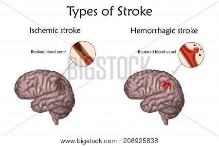 Stoke types poster, banner. Hemorrhagic, ischemic. Vector medical illustration. white background, anatomy image of damaged human brain, blocked and ruptured blood vessels.