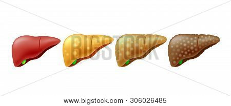 Stages Of Liver Damage. Liver Disease. Healthy, Fatty, Fibrosis And Cirrhosis. Illustration Info-gra