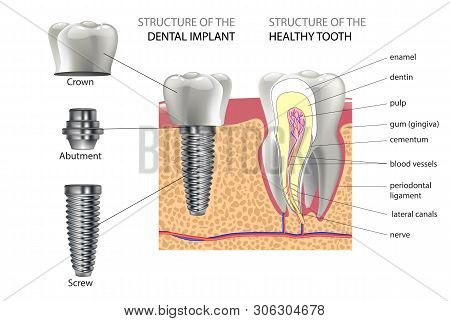 Realistic Healthy Tooth And Structure, Dental Implant With All Parts: Crown, Abutment, Screw.