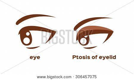 Ptosis Of Eyelid . Eye Sickness Anatomy Vector