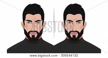 Man with dandruff falling on his shoulders, before and after therapeutic anti-dandruff shampoo, personal hygiene and attractiveness, health care, seborrhea. Vector illustration poster