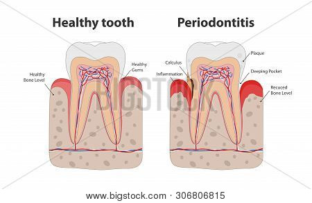 Healthy Tooth And Unhealthy Tooth With Periodontitis With Gum Inflammation Infographic Elements Isol