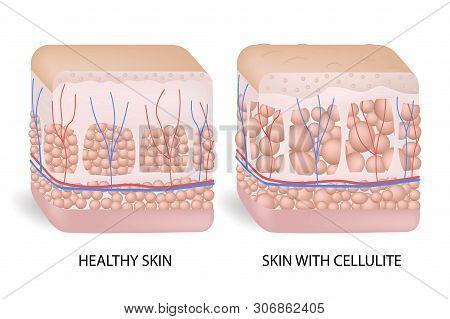 Illustration Of Skin Cross Section Showing Cellulite. The Formation Of Cellulite. Cellulite Occurs I