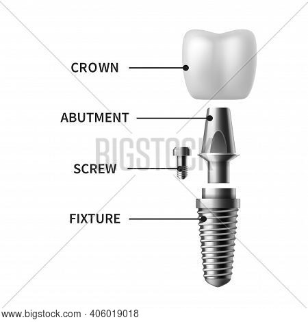Tooth Implant. Realistic Dental Implant Structure, Pictorial Models Crown. Screw Denture Orthodontic