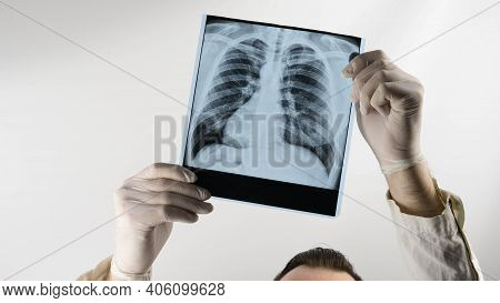 X-ray Picture Of A Man In The Hands Of A Doctor, A Medical Worker Examines An X-ray Of The Lungs. Pn
