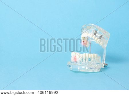 Dental Jaw Model On A Blue Background. Dental Disease Concept, Inflammation And Pain, Gum Redness, G