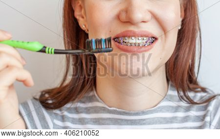 Braces In The Girl's Smiling Mouth. The Girl Pulls A Zebra Brush. Close - Up Photos Of Teeth And Lip