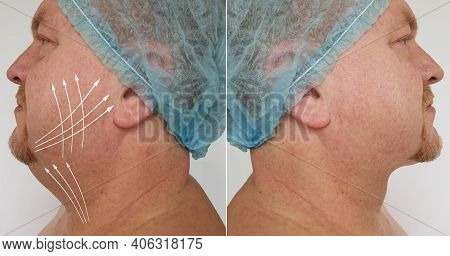 Man Double Chin Before And After Treatment