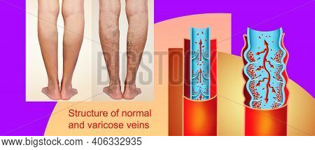 The Old Age And Sick Of A Woman. Varicose Veins On A Legs Of Woman. The Varicosity, Spider Veins, Ed