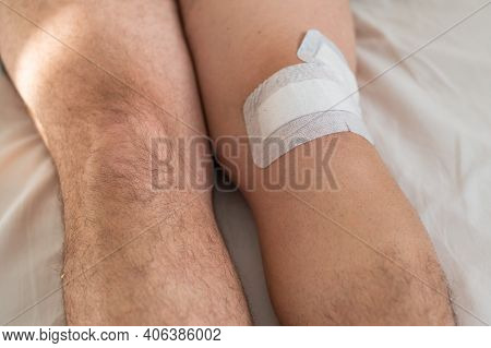 Close-up Of Male Legs With Knee Taped With Tape After Laparoscopic Minisk Surgery