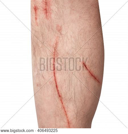 Scratch On A Man's Leg. Fresh Wounds From Cat Claws. Human Shin Is Damaged. Isolated On White