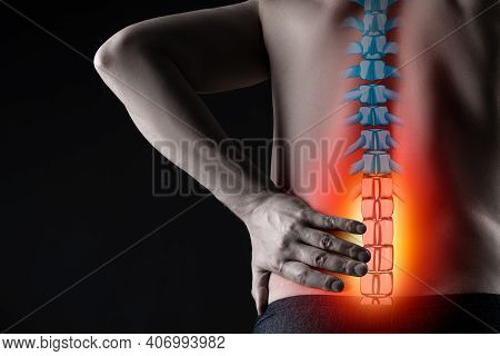 Pain In The Spine, Man With Backache On Black Background, Intervertebral Hernia Or Disc Injury Conce