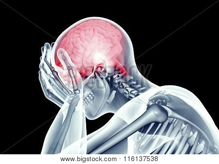 X-ray Image Human Head With Pain