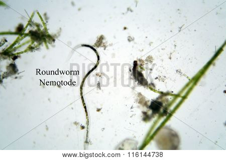 Microscopic life in fresh water pond Roundworm aka Nemotode and Green Algae photographed through a Microscope at 100 times its size. Photo taken with a DSLR Camera and a Microscope and adaptor poster