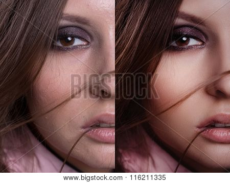 Beautiful Woman With Before And After Skin: Problem Skin With Blemishes And Clear Complexion
