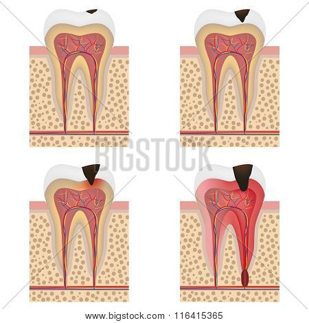 Development Of Dental Caries Illustration.