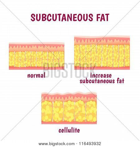 leather sectional layer of subcutaneous fat