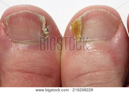 Close up of Fungal Nail Infection  on big toes