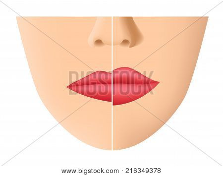 lip and mouth skin filler vector on white background