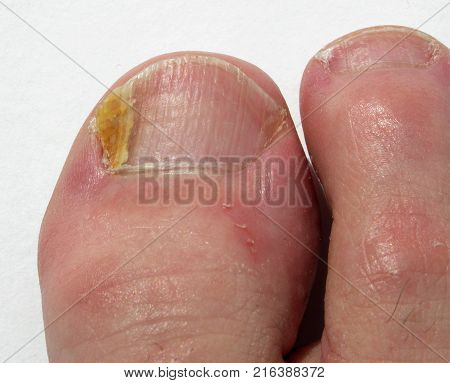 Close up of Fungal Nail Infection  on big toe