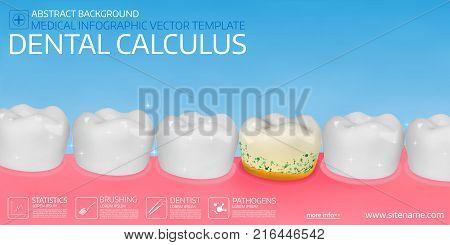 Dental calculus horisontal medical banner template. Vector illustration.