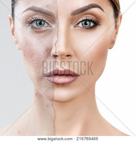 Comparison portrait of old photo with acne and healthy skin of woman. Skincare concept.