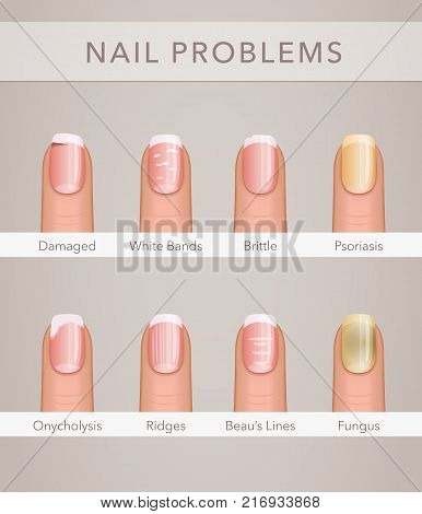 nail problems and illness, vector poster template