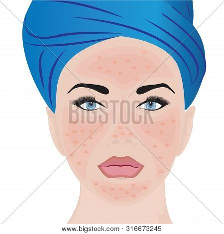 Rosacea moderate on a woman face vector illustration poster