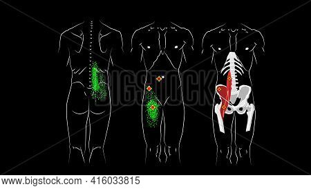 Trigger Points And Reflected Pain In Psoas Major Muscle, Msoas Minor Muscle And In Iliacus Muscle. I