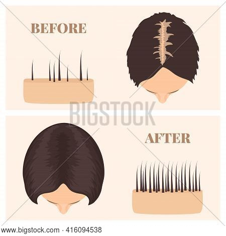 Woman In Top View Before And After Hair Loss Treatment