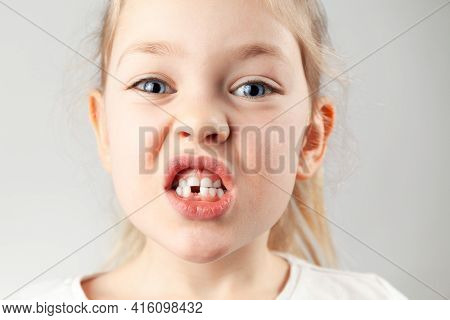 The First Children's Tooth Fell. Portrait Of A Child Girl With A Hole In The Teeth,