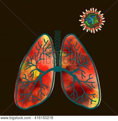 Coronavirus Atypical Polysegmental Pneumonia. Inflammation Of The Lungs Coronavirus Covid 19. Influe