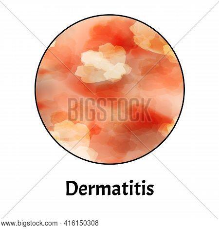 Skin Inflammation. Dermatitis Skin. Infographics. Vector Illustration On Isolated Background.