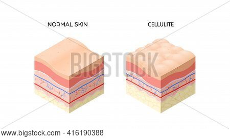Skin With Cellulite And Normal Skin Cross-section Of Human Skin Layers Structure Skincare Medical Co