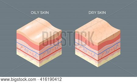 Oily And Dry Skin Cross-section Of Human Skin Layers Structure Skincare Medical Concept Flat Horizon