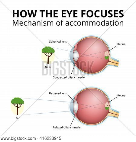 Lens Accommodation Mechanism, Projection Of The Image In The Eye
