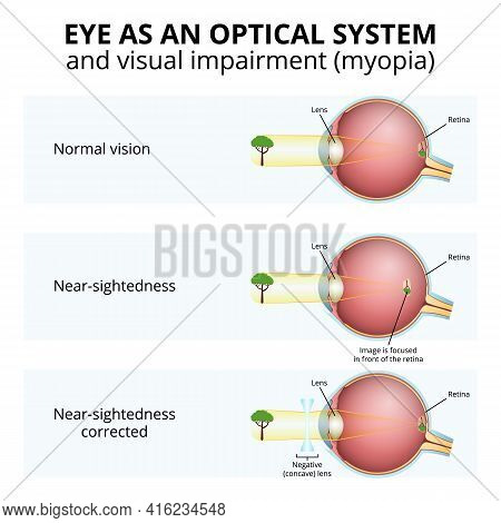 Myopia, Optical System Of The Eye And Visual Impairment, Visual Defect