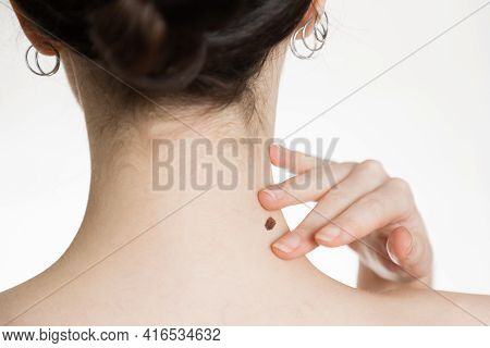 Dermatology. Close-up Of A Woman's Neck. The Hand Shows A Large Mole. The Concept Of Checking Moles