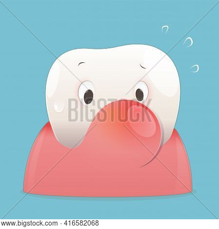 Periodontal Disease Illustration. Cartoon Periodontitis Disease. Vector Eps10