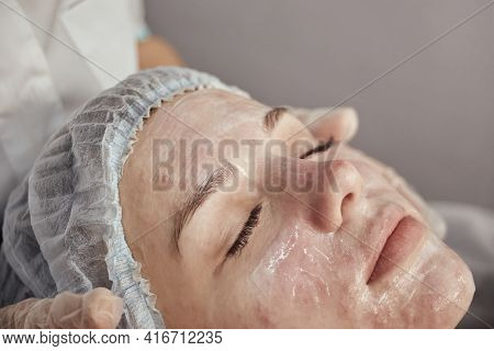 Acne Treatment In A Beauty Salon. Close-up Of A Womans Face With Acne Post-acne