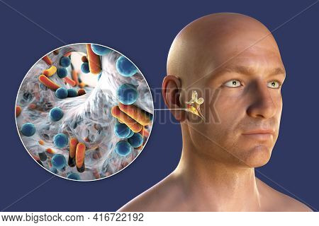 Otitis Media, Inflammatory Disease Of The Middle Ear, 3d Illustration Showing A Person With Highligh